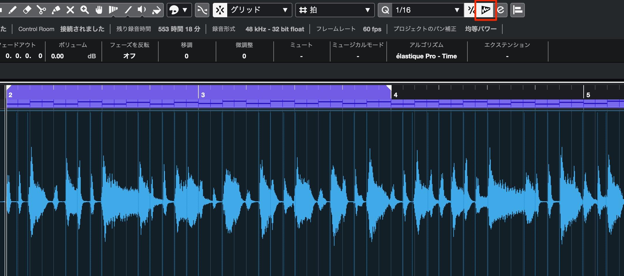 クオンタイズ_Audio